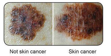 Dermtech Offers A Simple Way to Detect Melanoma Melanoma
